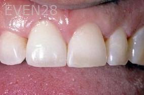 George-Tashiro-Dental-Implants-after-1