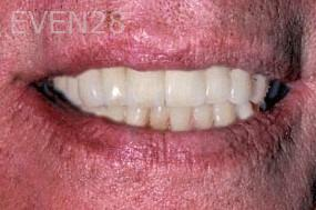 George-Tashiro-Dental-Implants-after-2