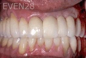 George-Tashiro-Dental-Implants-after-2b