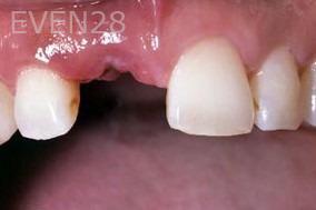 George-Tashiro-Dental-Implants-before-1