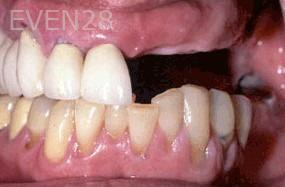 George-Tashiro-Dental-Implants-before-2b