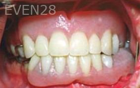 George-Tashiro-Dentures-after-1