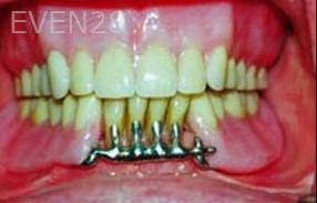 George-Tashiro-Dentures-after-2