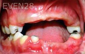 George-Tashiro-Dentures-before-1