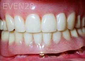 George-Tashiro-Implant-Supported-Dentures-after-1