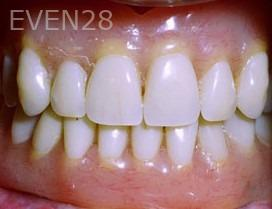 George-Tashiro-Implant-Supported-Dentures-after-2