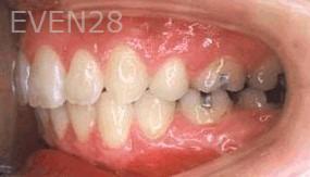 George-Tashiro-Orthodontic-Braces-after-1b