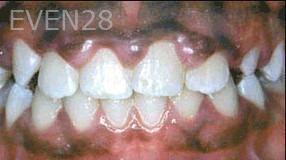 George-Tashiro-Orthodontic-Braces-after-4