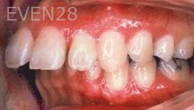 George-Tashiro-Orthodontic-Braces-before-1b