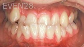 George-Tashiro-Orthodontic-Braces-before-2