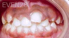 George-Tashiro-Orthodontic-Braces-before-4