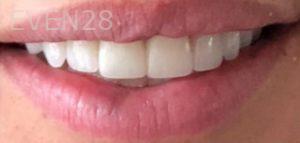 Golnar-Javaher-Dental-Crowns-after-1