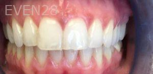 Golnar-Javaher-Dental-Crowns-before-1