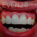 Huy-Dang-Dental-Crowns-after-1