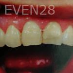 Huy-Dang-Dental-Crowns-before-1
