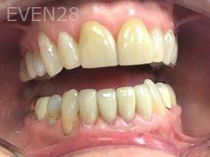 Ilya-Zak-Dental-Crowns-after-1