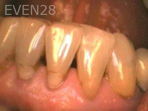 Ilya-Zak-Dental-Crowns-before-1