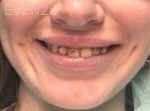 Ilya-Zak-Smile-Makeover-before-1d