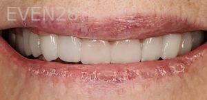 John-Cho-Dental-Crowns-after-1