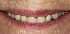 John-Cho-Dental-Crowns-before-1