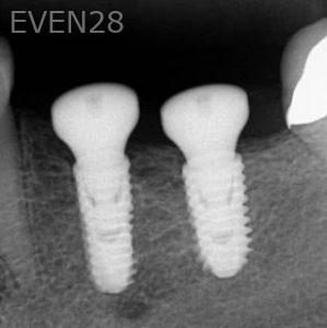 John-Cho-Dental-Implants-after-2