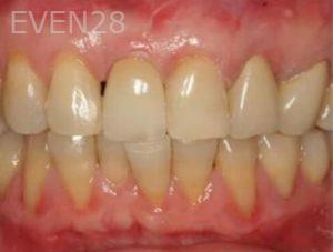 John-Cho-Dental-Implants-after-1