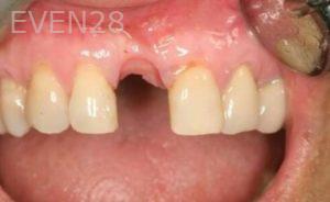 John-Cho-Dental-Implants-before-1