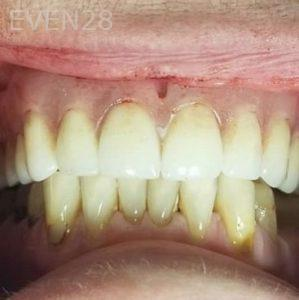 John-Cho-Full-Mouth-Dental-Implants-after