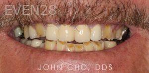 John-Cho-Full-Mouth-Rehabilitation-before-1