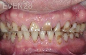 John-Cho-Full-Mouth-Rehabilitation-before-2