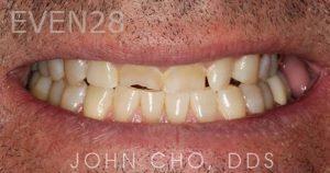 John-Cho-Porcelain-Veneers-before-1