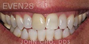 John-Cho-Porcelain-Veneers-before-2