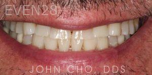 John-Cho-Porcelain-Veneers-before-3
