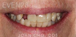John-Cho-Smile-Makeover-before-2