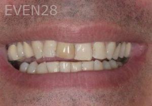 John-Cho-Smile-Makeover-before-3