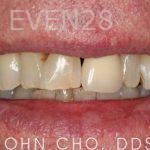 John-Cho-Smile-Makeover-before-4