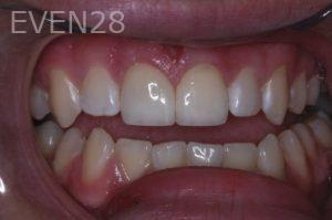 John-Gonzalez-Dental-Crowns-after-1