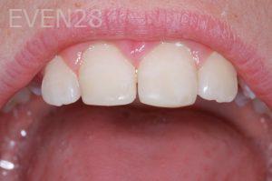 John-Gonzalez-Dental-Crowns-after-2