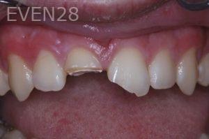 John-Gonzalez-Dental-Crowns-before-1