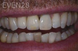 John-Gonzalez-Dental-Implants-after-1