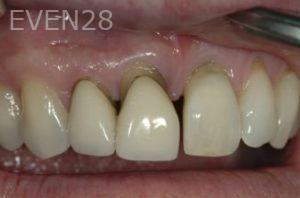 John-Gonzalez-Dental-Implants-before-1