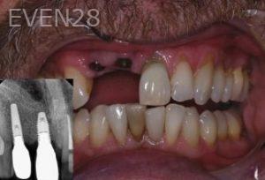 John-Gonzalez-Dental-Implants-before-1b