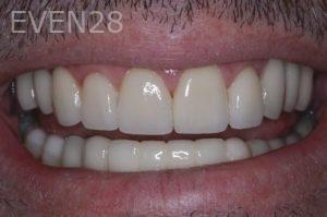 John-Gonzalez-Full-Mouth-Rehabilitation-after-1