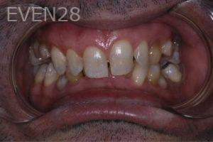 John-Gonzalez-Full-Mouth-Rehabilitation-before-1