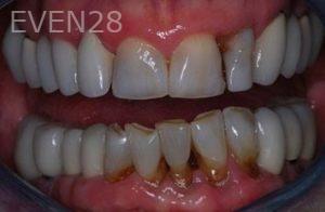 John-Gonzalez-Porcelain-Veneers-before-3