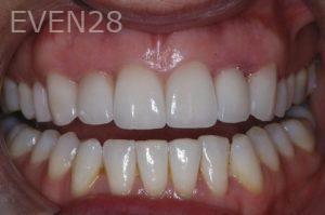 John-Gonzalez-Smile-Makeover-after-1