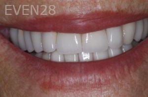 John-Gonzalez-Smile-Makeover-after-3