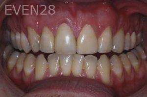 John-Gonzalez-Smile-Makeover-after-4