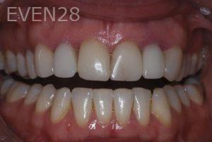 John-Gonzalez-Smile-Makeover-before-1