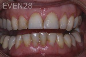 John-Gonzalez-Smile-Makeover-before-2